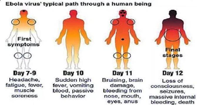 Basic Facts About Ebola Virus Disease ( Part 1)